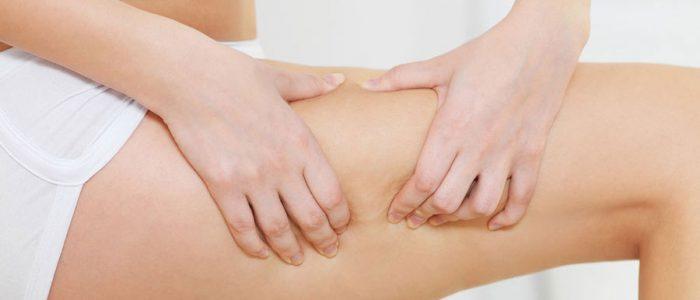 FASCIABLASTER: Does cellulite treatment work?